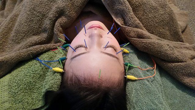 画像1: 美容鍼灸
