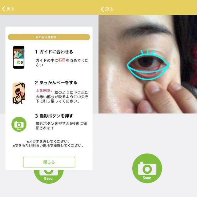 画像1: 花粉症レベルチェックは目の赤みチェックから。QOLも含め判断。