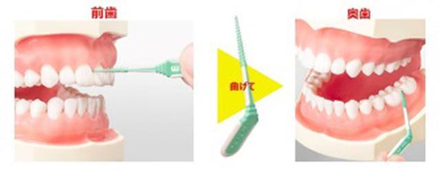 画像: 図1 持ち手上部が曲がるから奥歯をしっかりケアできる