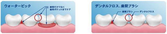 画像: デンタルフロスや歯間ブラシとの違い