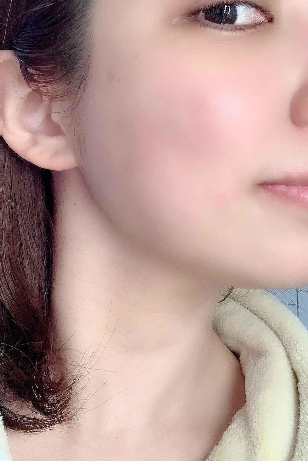 画像: 使用後すぐのスッピン肌をパシャリ!肌が本当になめらかでスベスベに♪