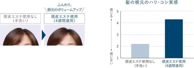 画像3: まずはあなたの頭皮状態をチェック!2個以上は危険信号 あなたは何個当てはまる?頭皮環境悪化に繋がるNG習慣チェックリスト