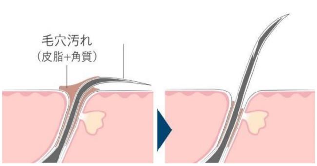 画像2: まずはあなたの頭皮状態をチェック!2個以上は危険信号 あなたは何個当てはまる?頭皮環境悪化に繋がるNG習慣チェックリスト