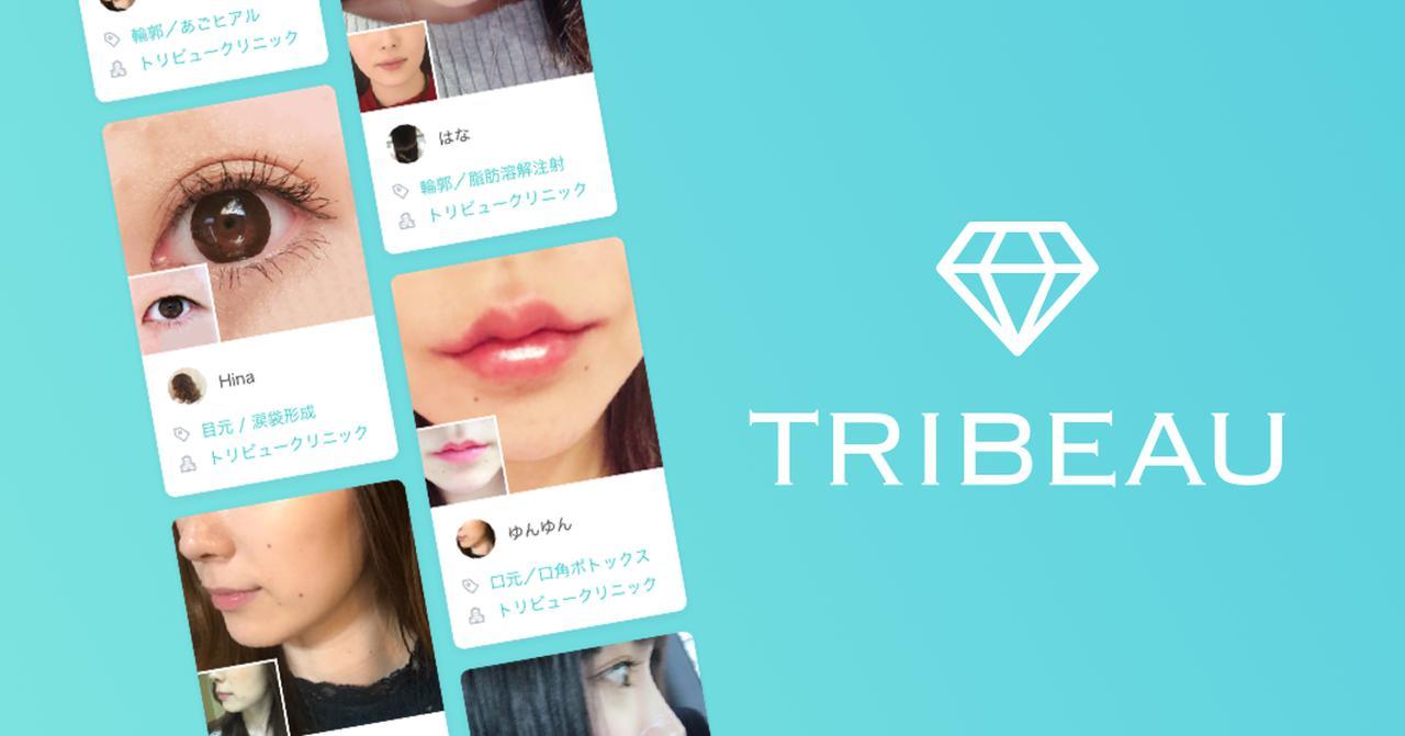 画像: トリビュー[TRIBEAU] 美容医療・整形の口コミ予約アプリ