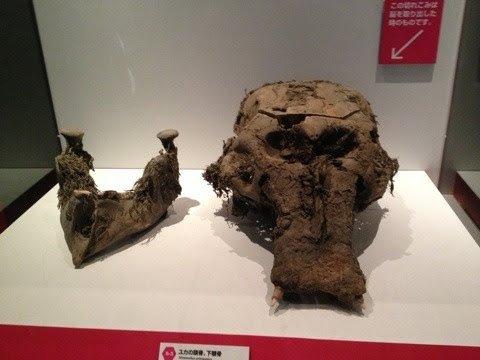 画像: 脳を取り出した為頭蓋骨が横に切ってあるYUKAちゃん