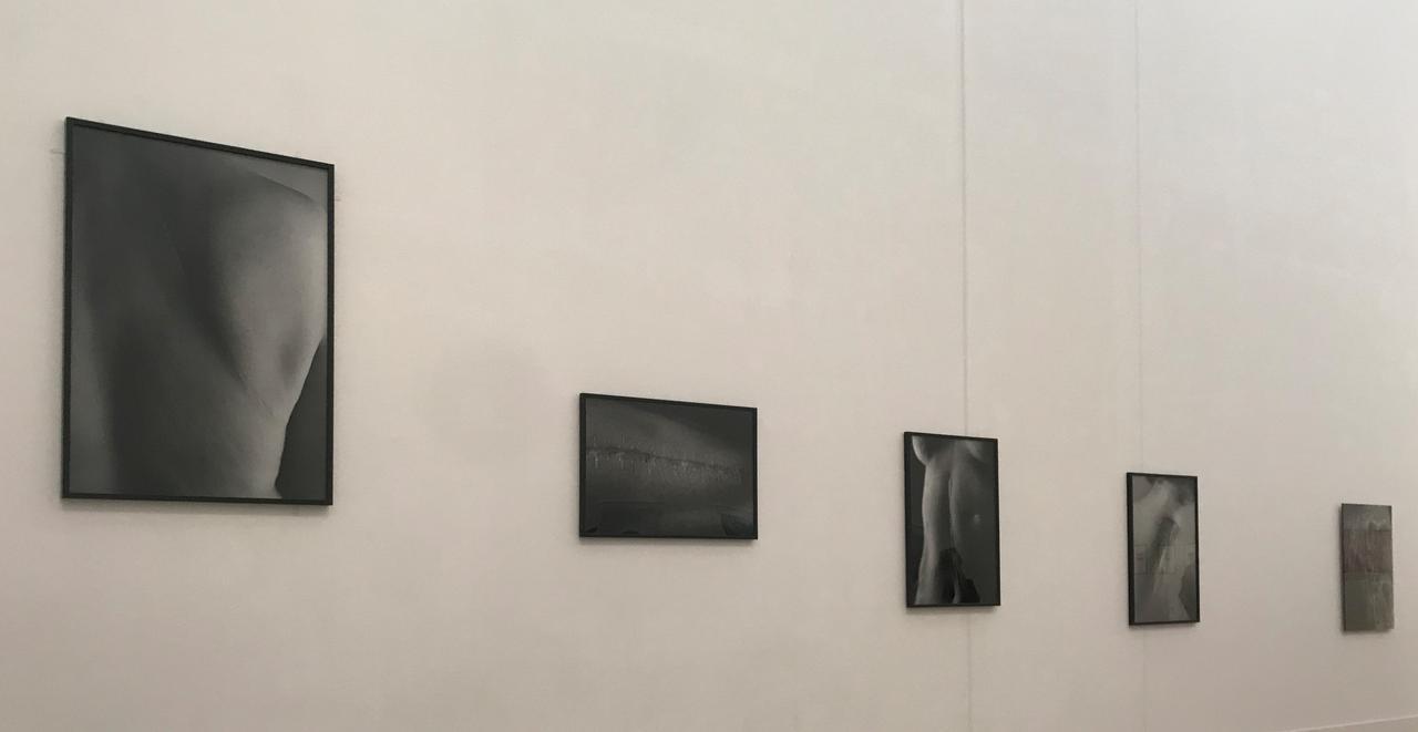 画像: 「プロローグ-身体と風景」 展示風景:石内都 《「Scars」シリーズ 》 photo©saitomoichi