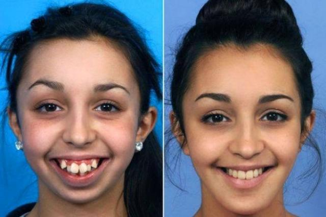 画像1: 生まれつき顎が変形していた女性が、苦しい手術や治療を経て見違えるほど美しく成長し、話題となっている。 8歳から顎の成長が止まっていた その女性とはイギリスのウェールズに住むEllie Jonesさん(20)。 彼女は生まれつき歯並びが悪く、顎が小さく変形しており、長い間悩んでいたようだ。 しかし14歳の時に、歯の矯正器具を取り付けてもらうため医者を訪問。 担当した歯科矯正医のJoy Hickmanさんは、Ellieさんの顎が8歳の時から成長しておらず、非常にレアなケースだと気づく。 そこで一緒に働いていた顎顔面外科医のEmma Woolleyさんに相談。その結果、Ellieさんは16歳の時に初めて、顎を水平または垂直に切断する手術を [...] irorio.jp