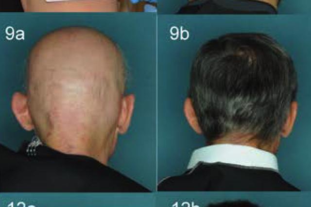 画像1: 骨髄線維症の治療薬であるルキソリチニブにめざましい発毛効果があることが、米国コロンビア大学の調査で分かった。 円形脱毛症の治療効果を調査 ルキソリチニブという薬に、円形脱毛症を治す効果があるらしいことはこれまでに分かっていた。今回の発見をしたコロンビア大学の研究者たちは、その効果を測定する調査を行なったとのこと。 彼らは、中度から重度の円形脱毛症の患者12人に、3〜6カ月間、ルキソリチニブの錠剤(20mg)を与えた。円形脱毛症といっても、重度になると髪の毛がほとんどない。 薬に反応しない患者もいたが、12人中9人には薬の効果があり、髪の毛が生えて来たという。そして驚いた事に、おおよそ4カ月でその9人の髪の毛は90%以上回復した。つま [...] irorio.jp