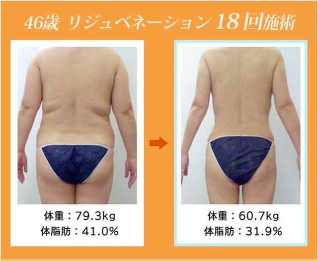 画像: 若返り・ダイエットのリジュベネーション 1回の効果が他の痩身術の5~6回分!(当社比)   ダイエット、痩身のエステ・ステーション
