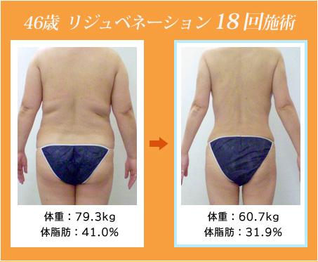 画像: 若返り・ダイエットのリジュベネーション 1回の効果が他の痩身術の5~6回分!(当社比) | ダイエット、痩身のエステ・ステーション