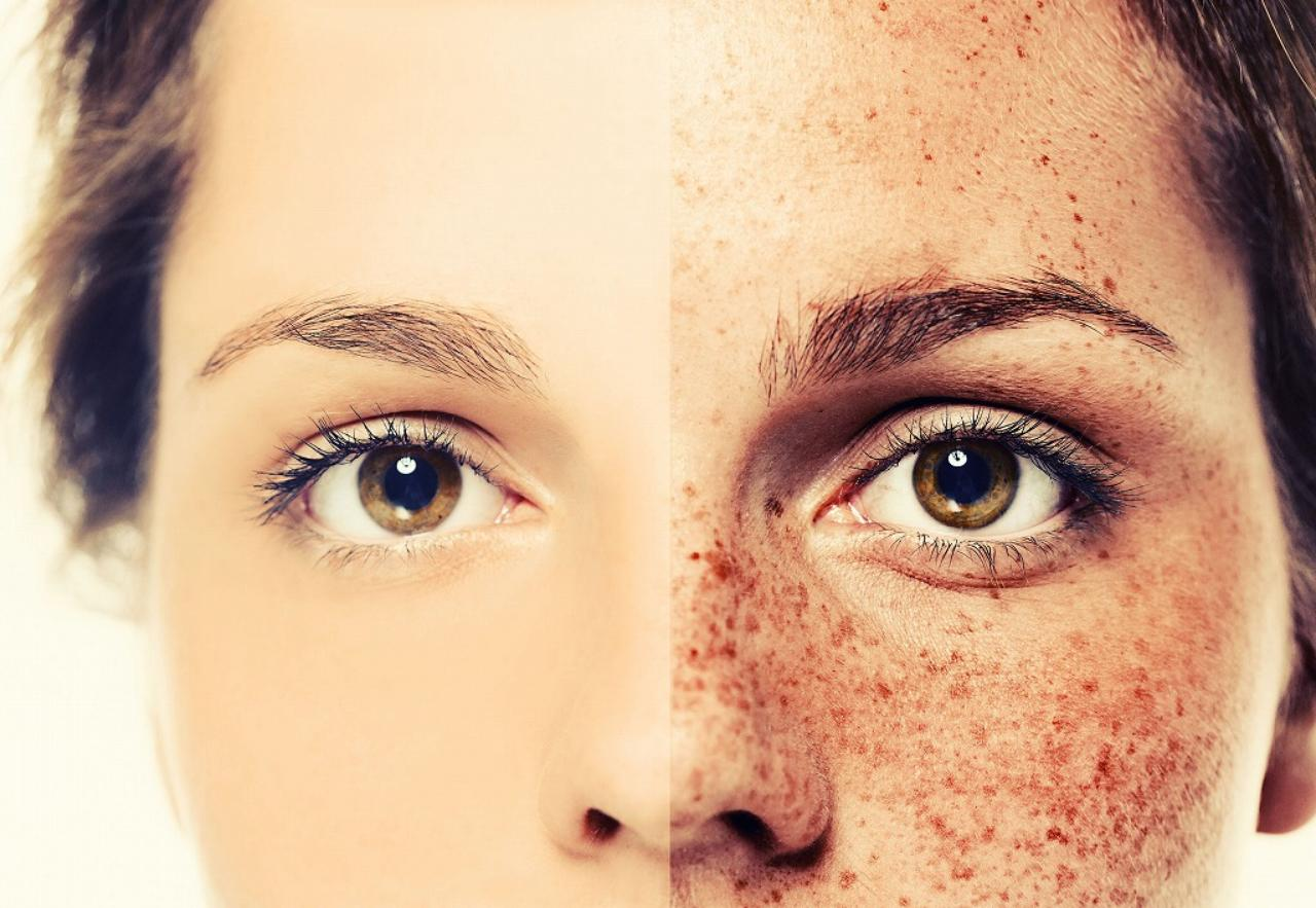 画像: 正しい美顔ローラーを選ばないとどうなるのか