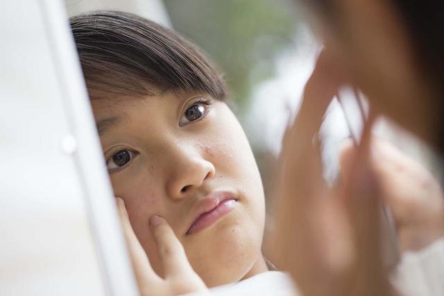 画像1: ニキビに悩む妹がキレイになった秘密