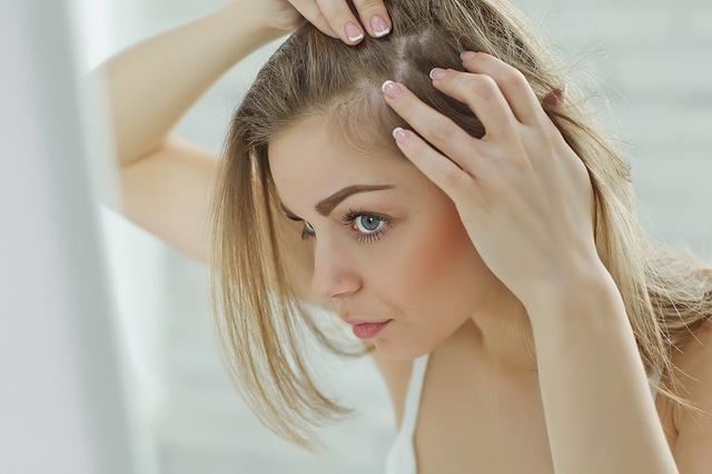 画像: 20~30代に起こる「若年性脱毛症」