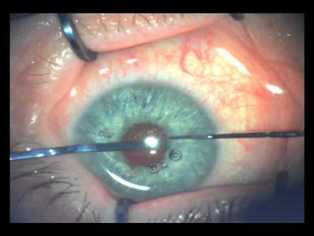 画像: Artificial Iris implantation Dr.Mishev.mov m.youtube.com