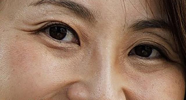 画像1: シワ・ほうれい線に悩み始めた! 気づけば、立派なおばさん顔!