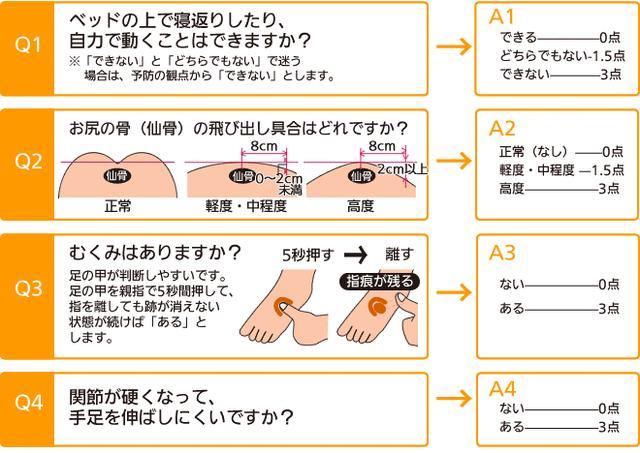 画像: 【OHスケールによる褥瘡危険要因のチェック表】 (出典:神崎株式会社HP http://www.scrio.co.jp/fukusi_yougu/yougu_post-10.html )