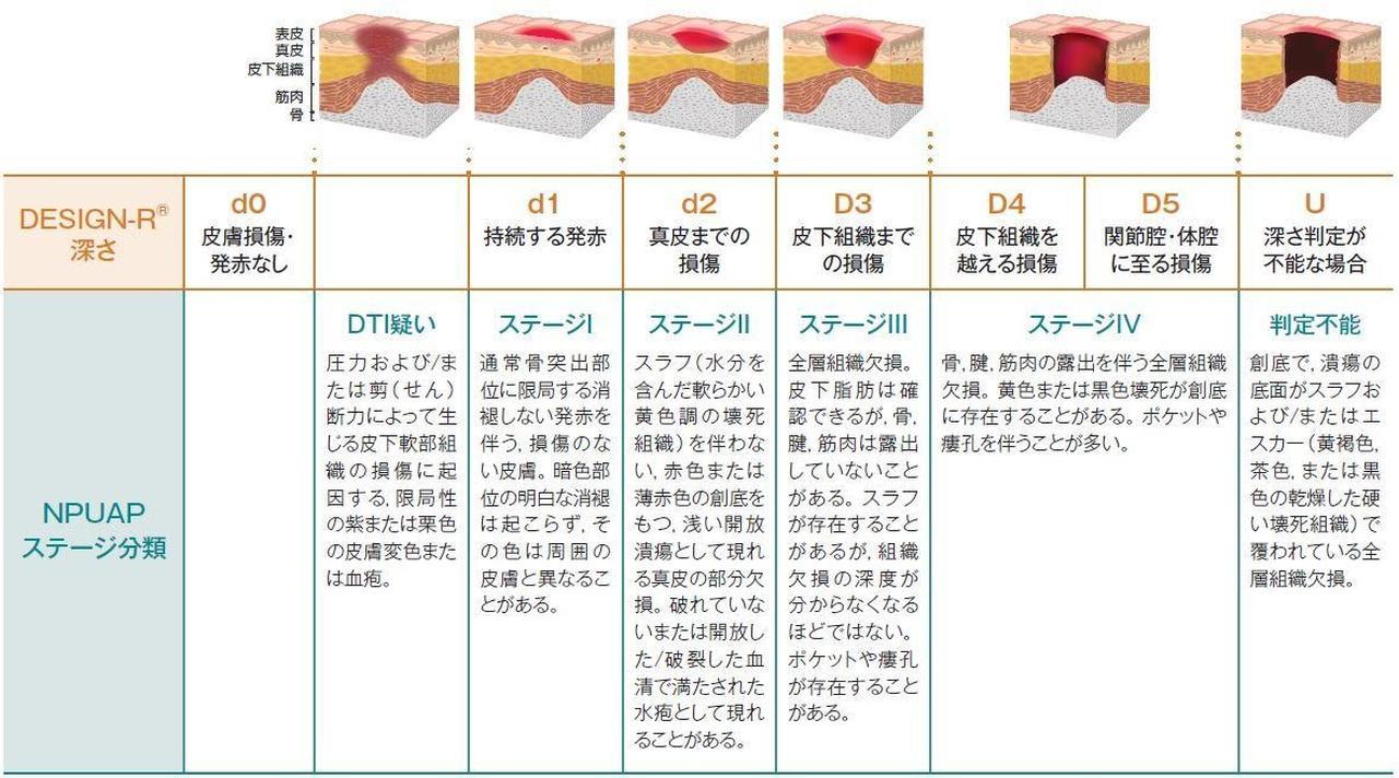 画像: 【DESIGNとNPUAPの褥瘡のステージ分類対照表】 (出典:日本褥瘡学会編.褥瘡予防・管理ガイドライン.照林社.2009)