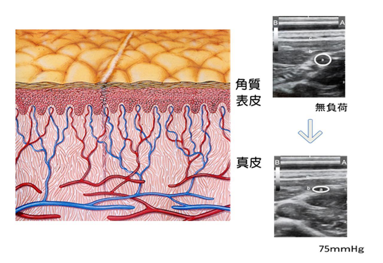 画像: (出典:高橋誠ら:圧・ずれ力が橈骨動脈と皮膚毛細血管の血流量に与える影響)