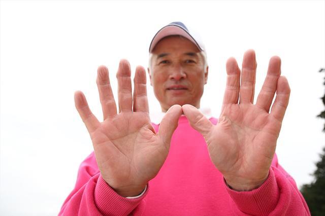 画像: 「私は素振りでプロになりました」とは富士クラシックCC所属・ツアー通算2勝の浜野治光プロ。「100万回以上振った」という素振りのせいで、指が変形している