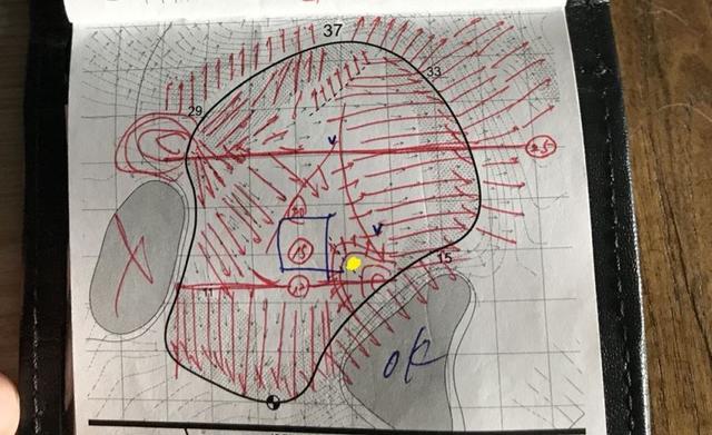 画像: 平らな部分は青線で囲われたわずかな部分しかないシネコックヒルズGC13番ホールのグリーン図。黄色が3日目のピンポジションで、奥から打ってピンをオーバーすると、グリーンを出るか、バンカーに入ってしまう