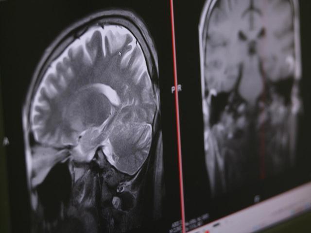 画像: 一流選手の頭がいいのは、スポーツによって大脳によい刺激が与えられているからだと吉松氏は言う(写真はイメージ 撮影/阿部了)