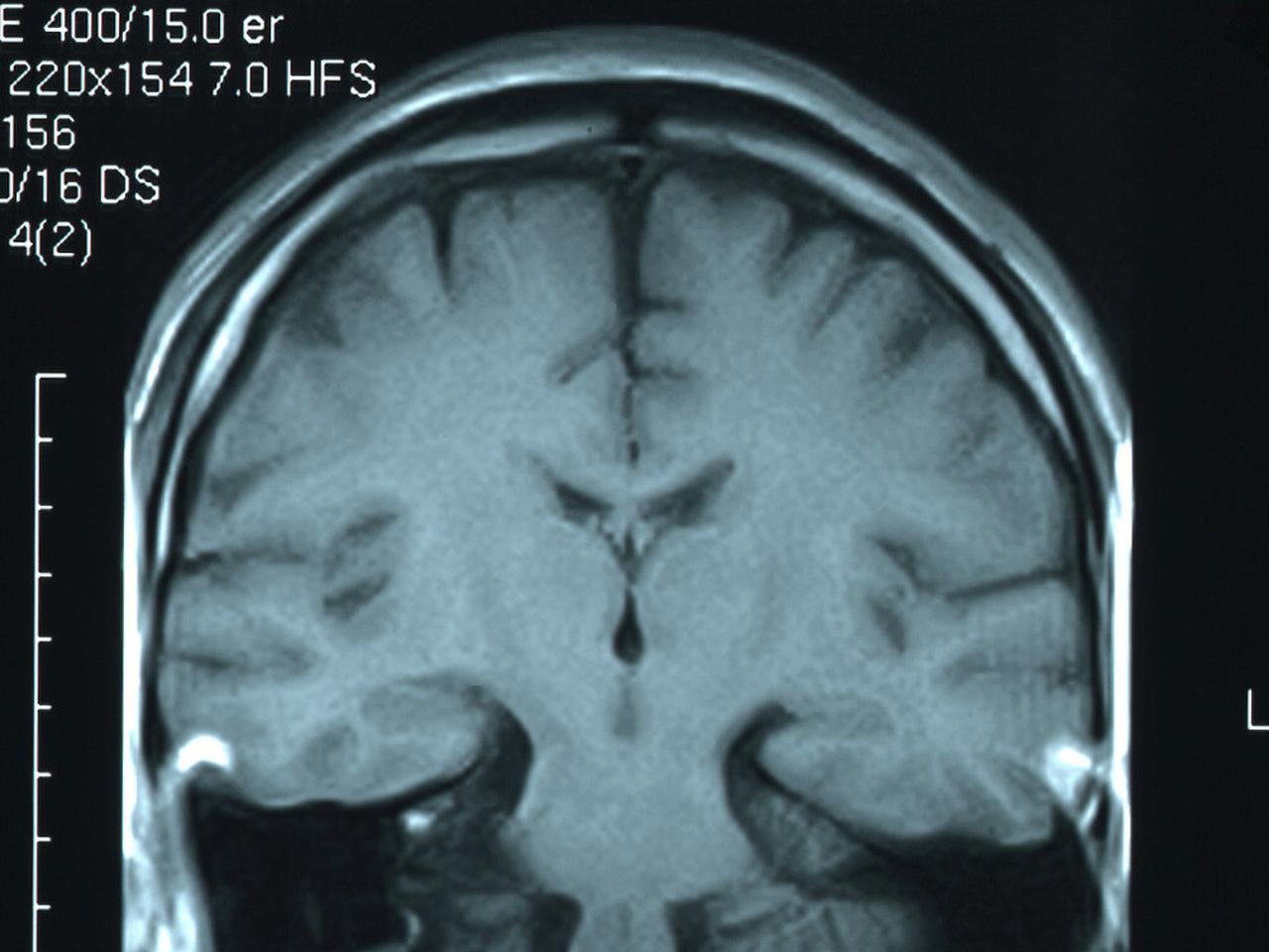 画像: 人間はピンチに陥ると脳のリミッターが外れ、潜在的な力が発揮されると吉松氏(写真はイメージ)
