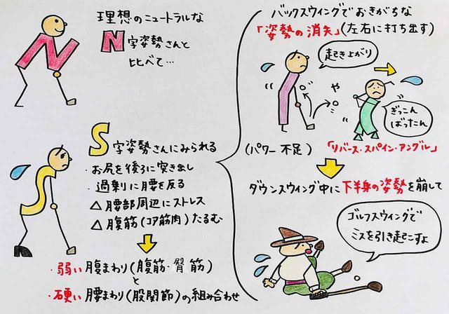 画像: S字姿勢のゴルファーは起き上がりのミスが多い傾向にある