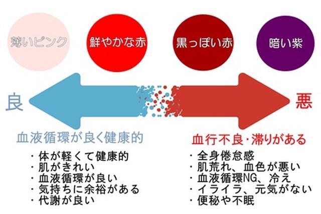 画像1: カッピングの色で身体の状態が分かる!