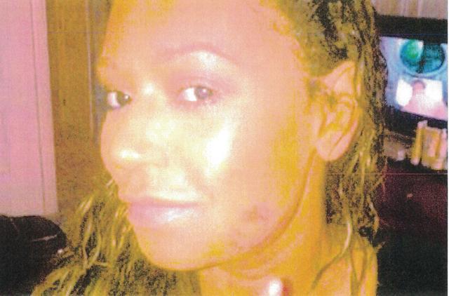 画像: メラニーが裁判所に提出した顔のあざ写真。
