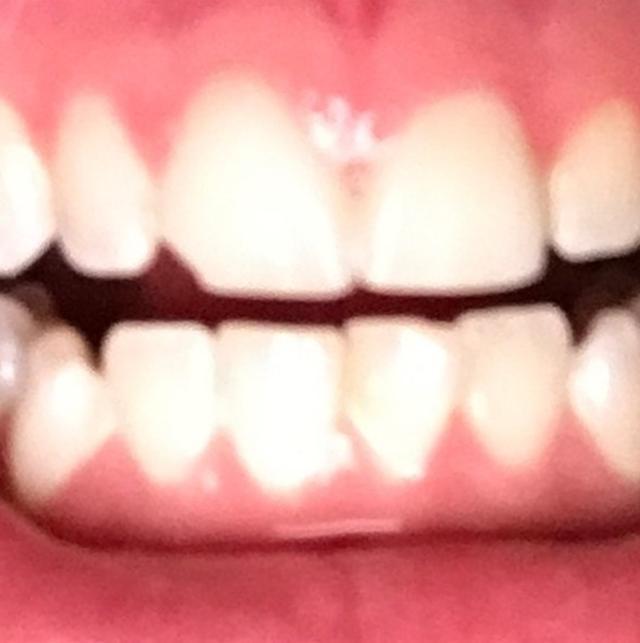 画像2: 【悲報】ジャスティン・ビーバーの歯が欠ける