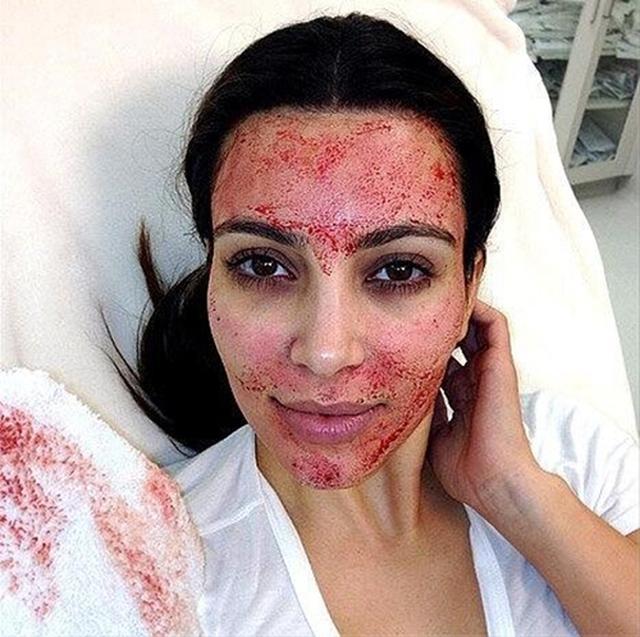 画像: コチラはキムの施術後の様子。