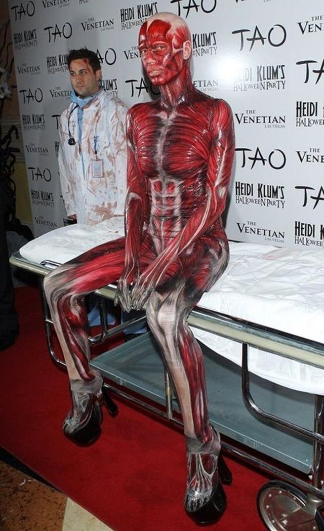 画像2: 2011年:ゴリラ・死体