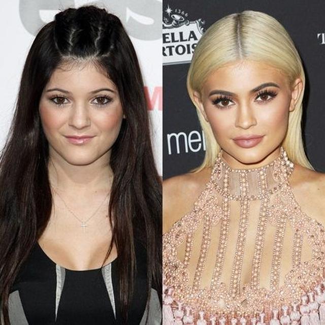 画像: (左)2010年のカイリーと、(右)2016年のカイリー。