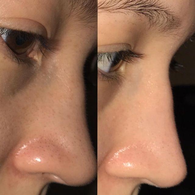 画像: 1ヵ月で毛穴の黒ずみを綺麗さっぱり除去した女性のスキンケア法