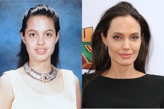 画像: 左14歳 右41歳