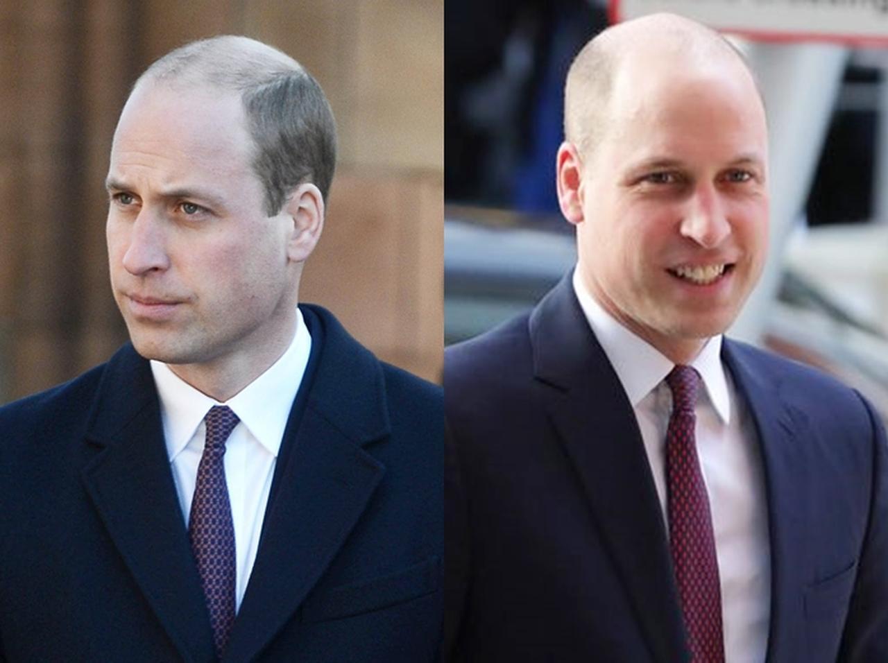 画像: 左:ビフォー、右:アフター。