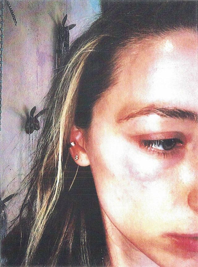 画像: 「ジョニーが野球の投手のように振りかぶって投げた電話は、私の頬と目に強くぶつかりました」とアンバーは証拠となる目の周りの大きなアザを撮影した写真を提出した。