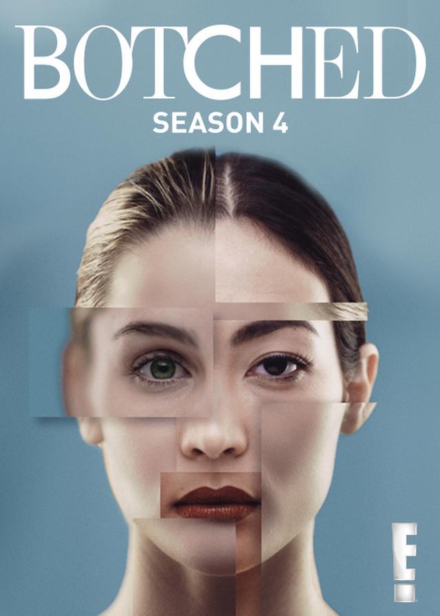 画像: 『Botched:整形手術の光と闇』シーズン4 pc.video.dmkt-sp.jp