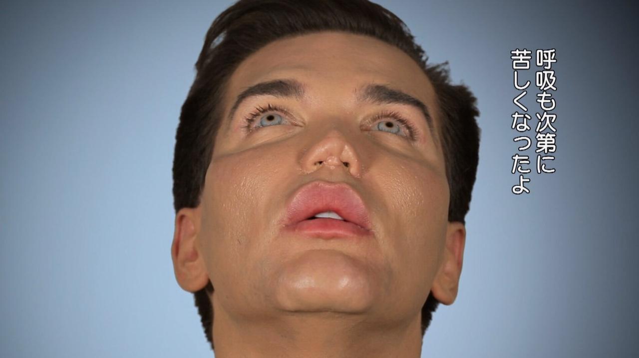 画像2: 『Botched:整形手術の光と闇 シーズン4』第6話