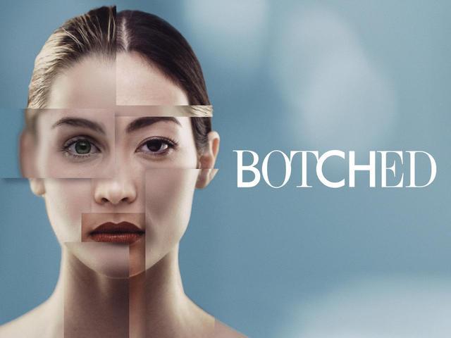 画像: 『BOTCHED~整形手術の光と闇~』シーズン5