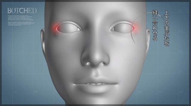 画像3: カリスマ医師にとっても難しい修正施術