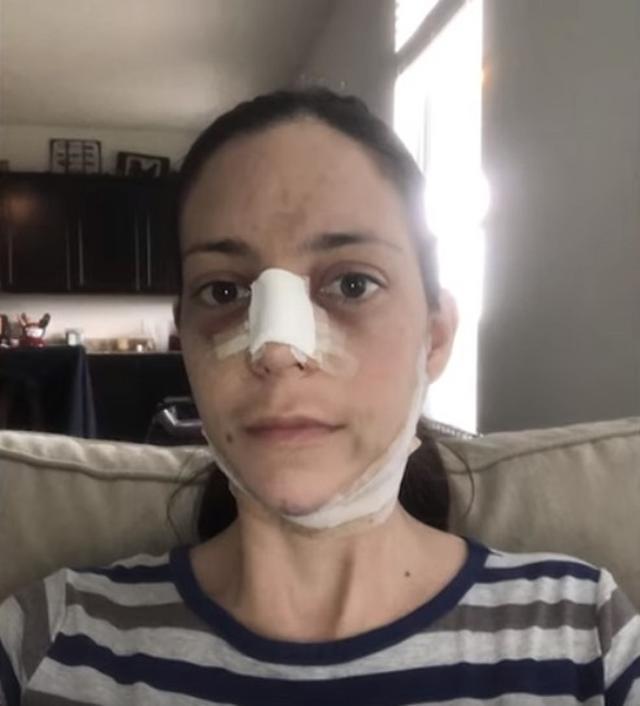画像: 術後のダウンタイム中のゾーチル。©Caters Clips/ YouTube