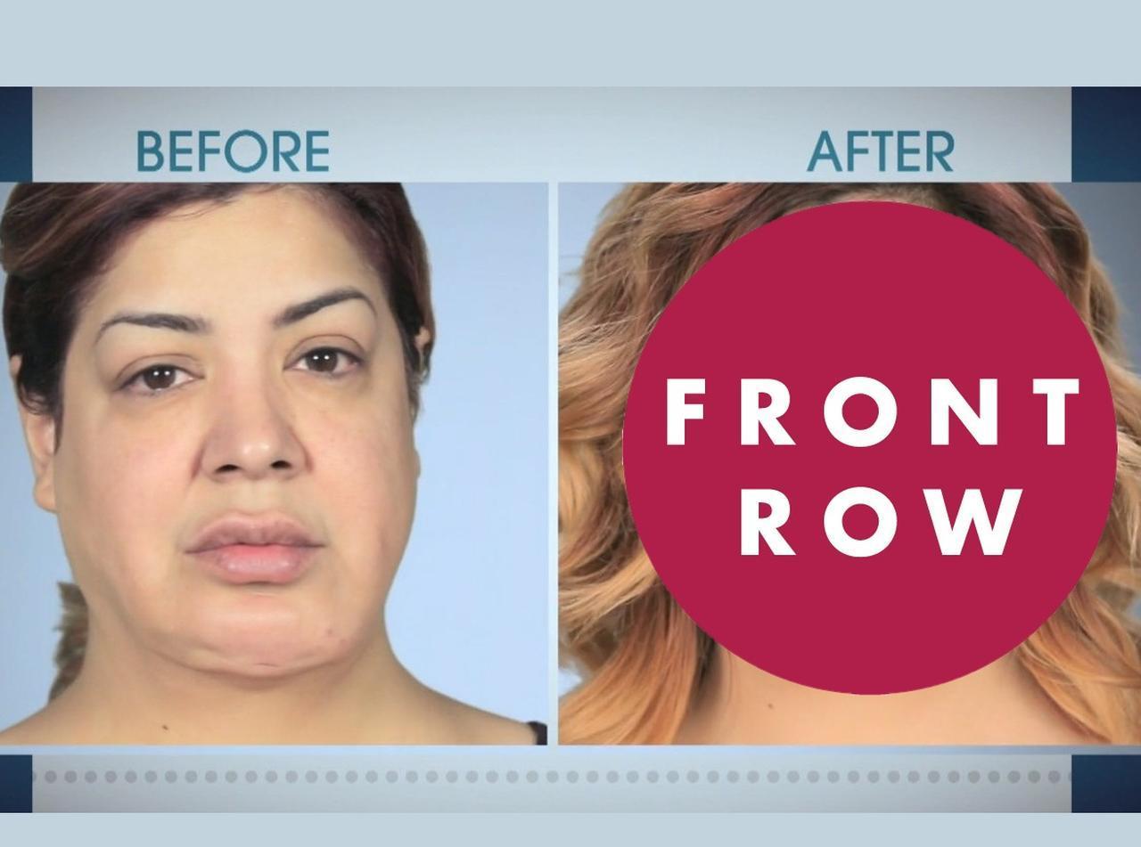 整形失敗して悪夢見た女性、「フェイスリフト」と「切らないタルミ治療」でハート型小顔に