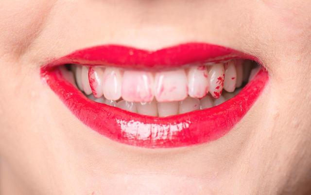 画像: 恥ずかしすぎる、歯に口紅の色がつくのを「数秒」で解決する裏技