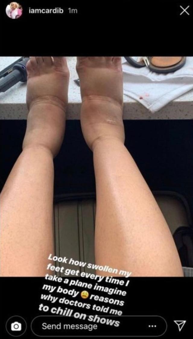 画像: カーディーがインスタグラムで公開した腫れ上がった両足の写真。©Cardi B/ Instagram