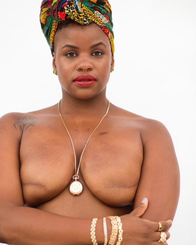 画像: 28歳で乳がんに