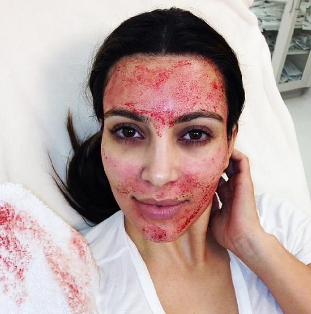 画像2: カーダシアン姉妹が試した美容法