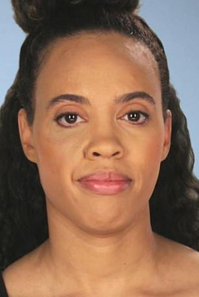 画像: 再手術後のクリスタルの顔写真。