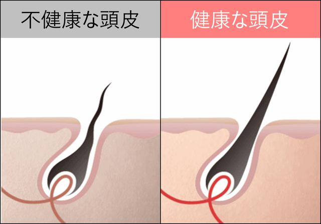 画像1: 「ビタブリッドCヘアー」は 頭皮年齢へのアプローチ で発毛促進