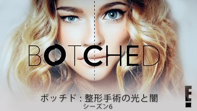 画像2: 『ボッチド:整形手術の光と闇』シーズン6が日本上陸